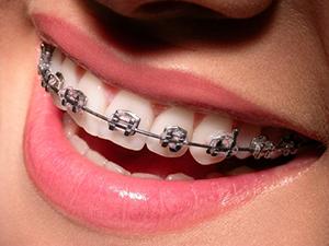 appareil_dentaire_adulte