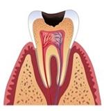 carie dentine